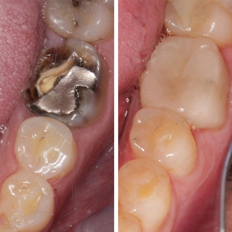Broken tooth with Amalgam(silver) filling to Ceramic Crown