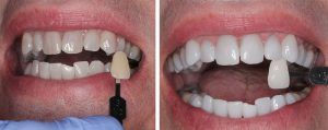 bonding, crowns, bridges, root canal, dentures, whitening, veneers, Fitchburg, 01420